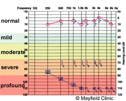 how to read audiogram test results